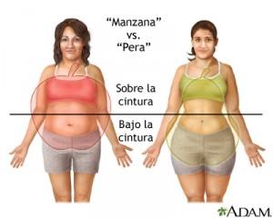 obesidad segun su distribución